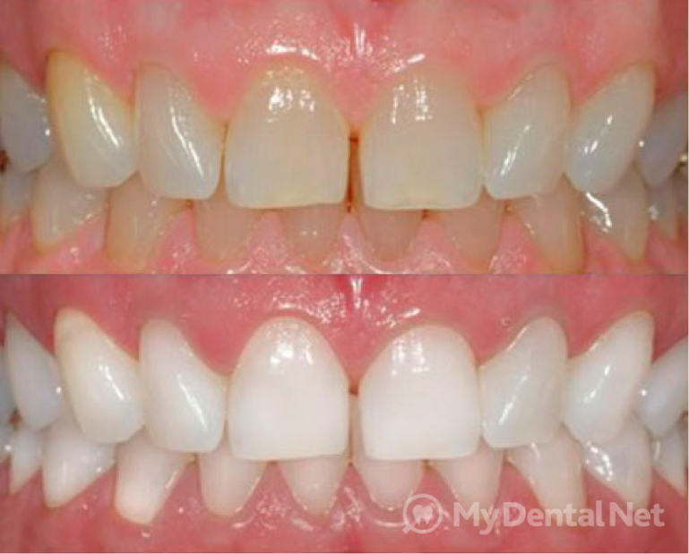 Что делать, если зубы здоровы? Сделать их красивей