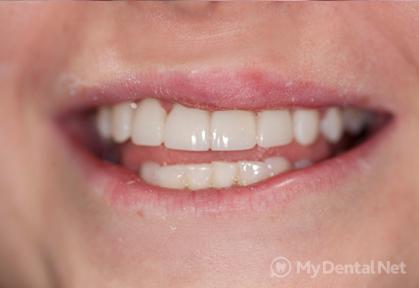 отзывы о винирах на зубы стоимость