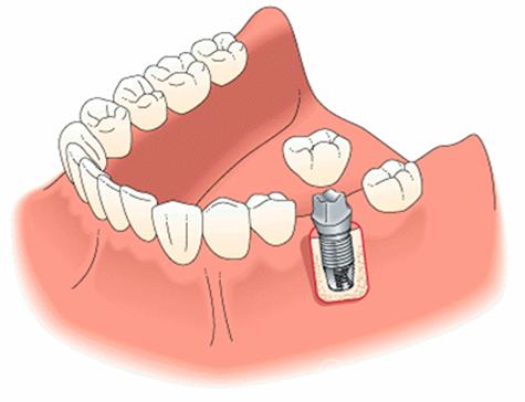 зубные пластины виниры