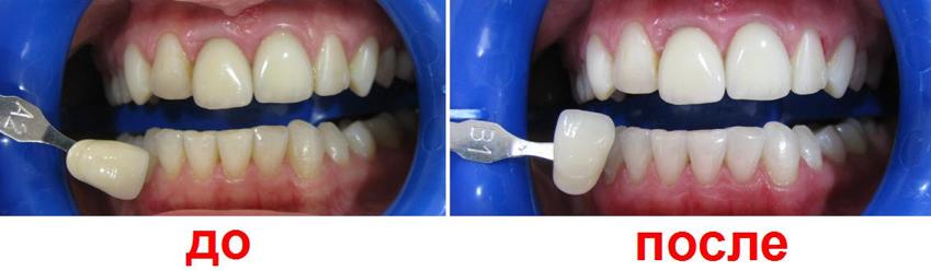 Как очистить зуб от зеленки