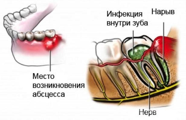 чем снять отек в носу при аллергии