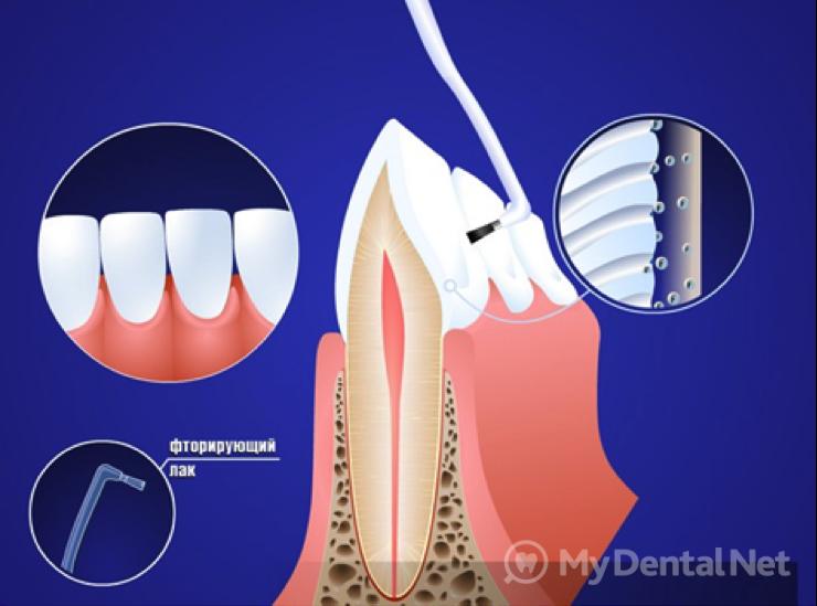 капы для отбеливания зубов спб
