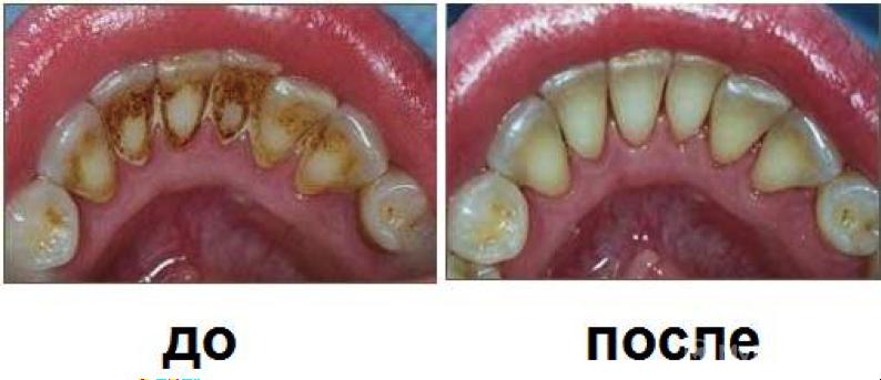 Почистить налет на зубах в домашних условиях - Autotronix