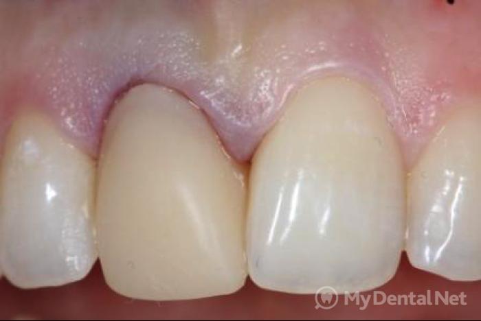 Как вставляется коронка для зубов