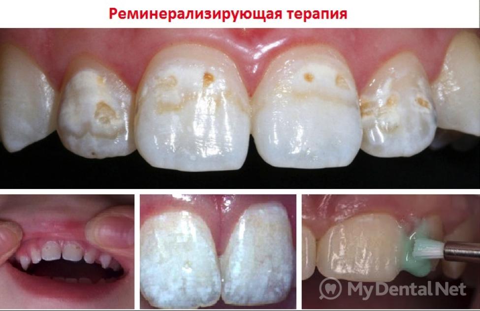 Кальция глюконат реминерализация зубов