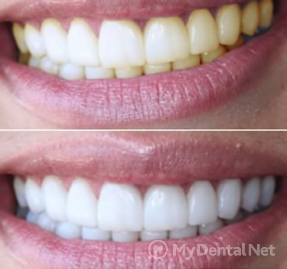 Чистка зубов, лечение, отбеливание, коронки и не только в