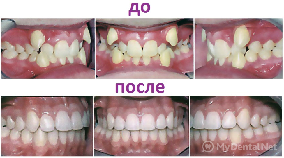 Как отбелит зубы содой